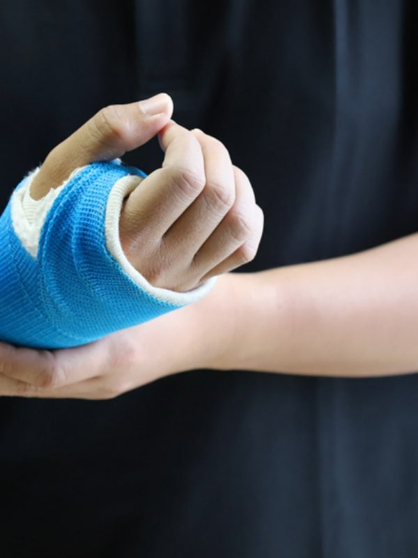 Fractures – types and treatment